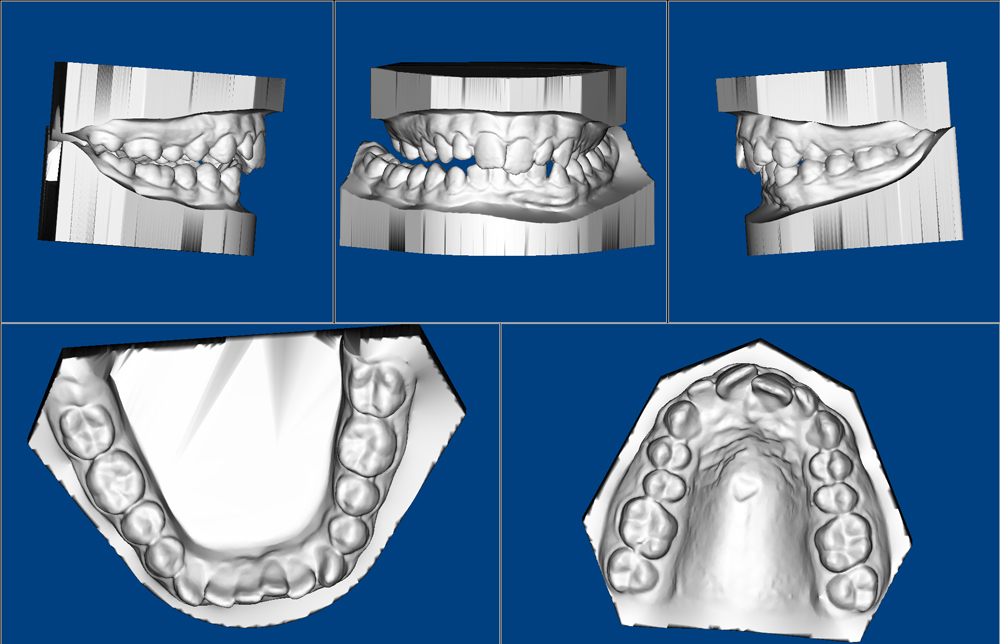 01-3D-Study-Models-sem-cortar