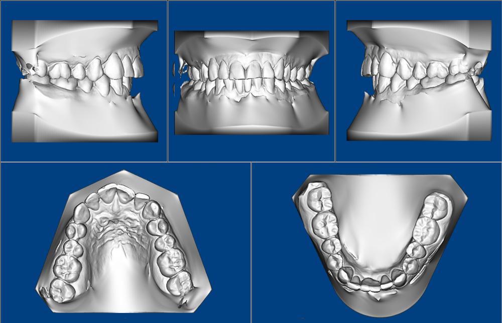 03-3D-Study-Models-5-visualizações-ao-mesmo-tempo