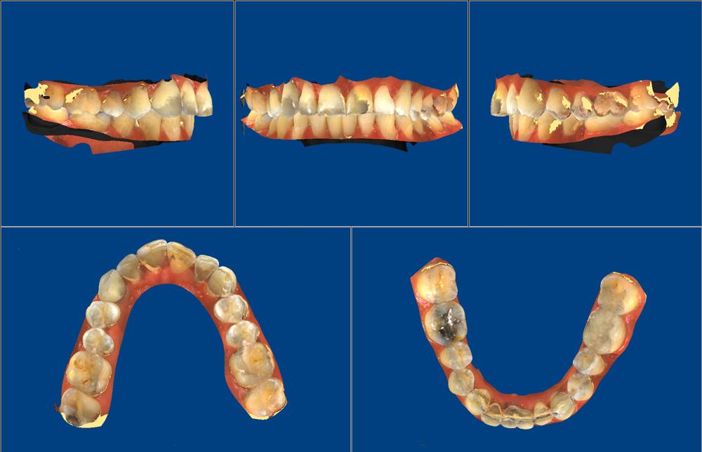04-3D-Study-Models-5-visualizações-ao-mesmo-tempo-em-cores